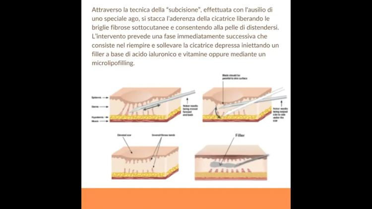 Subcision filling - Dott. Tommaso Savoia Med