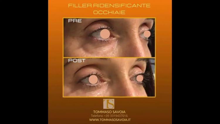 Eliminare occhiaie - Dott. Tommaso Savoia Med
