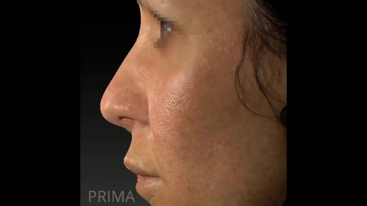 Filler Acido Ialuronico - Dott.ssa Cristina Sartorio