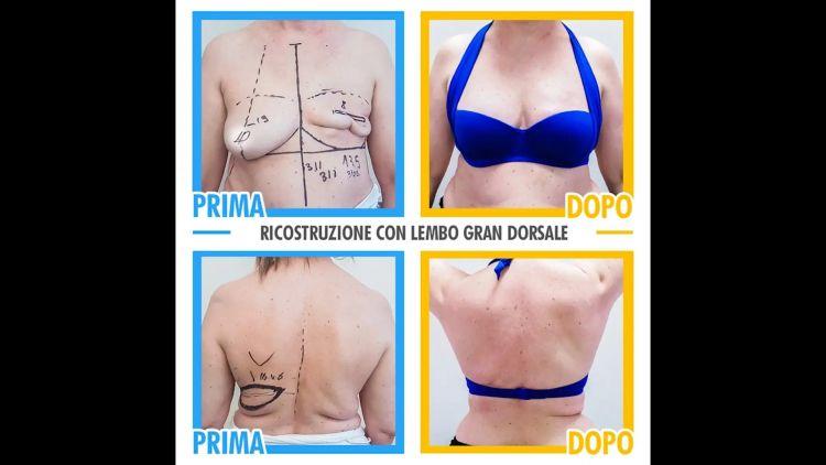 Ricostruzione mammaria - Dr. Pietro Loschi