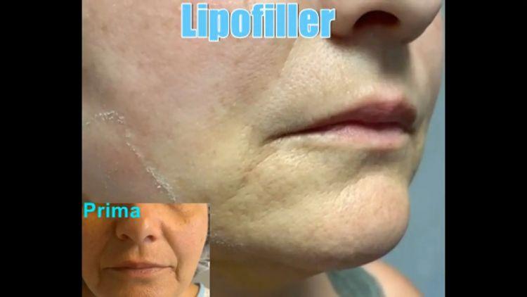 Lipofiller - Dott. Jacopo Dei