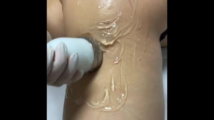 Cavitazione medica - Dott. Luigi Turco